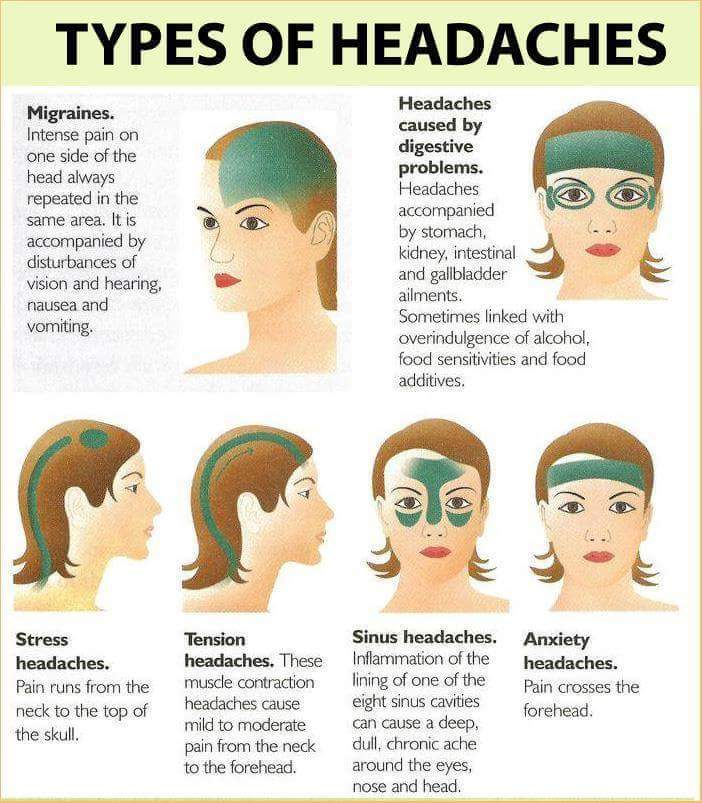 Headache chart do it and how